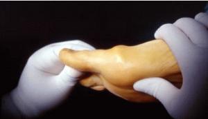 infiltrazioni acido ialuronoco artrosi metatarso falangea