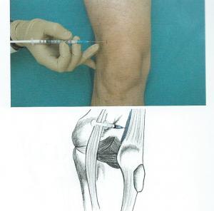 tecnica infiltrazione per il ginocchio nella borsa sovrapatellare