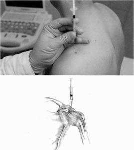 infiltrazione per la spalla in caso di artrosinovite acuta