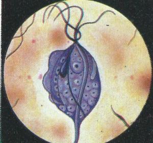 Il trichomonas vaginalis rappresenta il protozoo maggiormente responsabile della cervicite